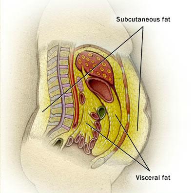 perdre la graisse de lintestin