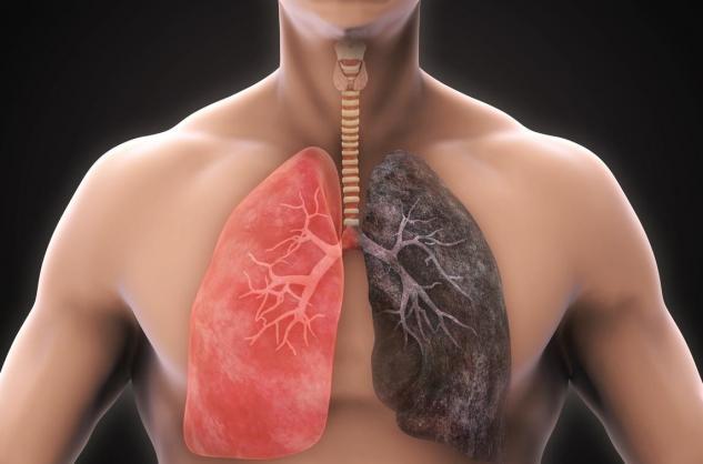 nodule sur les poumons et la perte de poids