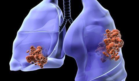 perte de poids et liquide sur les poumons