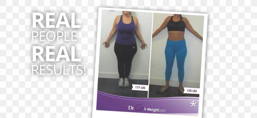 les vergetures accompagnent-elles la perte de poids chasser la perte de poids hanlon