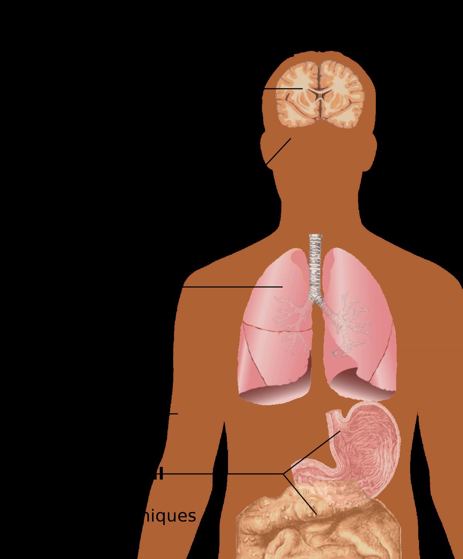 symptômes de perte de poids du vih