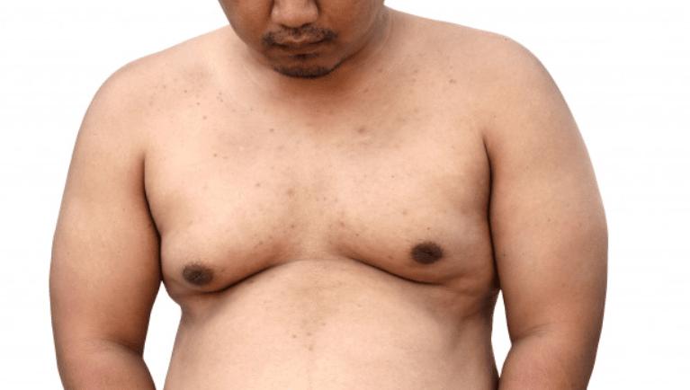 comment perdre de la graisse thoracique chez les hommes