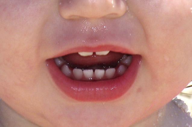 Spray de langue de perte de poids.