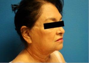 dr rodriguez perte de poids mcallen tx