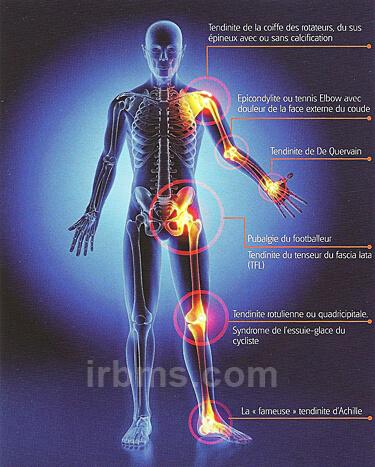 douleurs osseuses et perte de poids