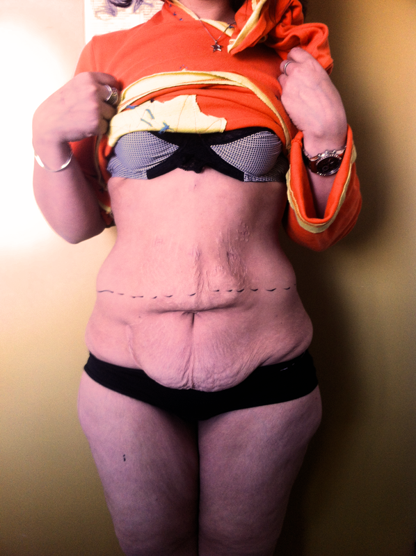 abdominoplastie perte de poids avant après