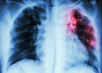 perte de poids et liquide sur les poumons comment perdre du poids grâce aux antipsychotiques