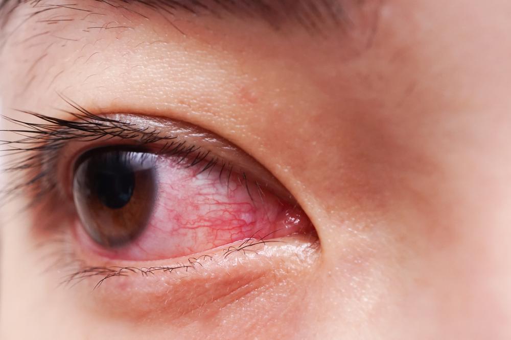 problèmes oculaires de perte de poids 25 livres de perte de poids en 6 mois
