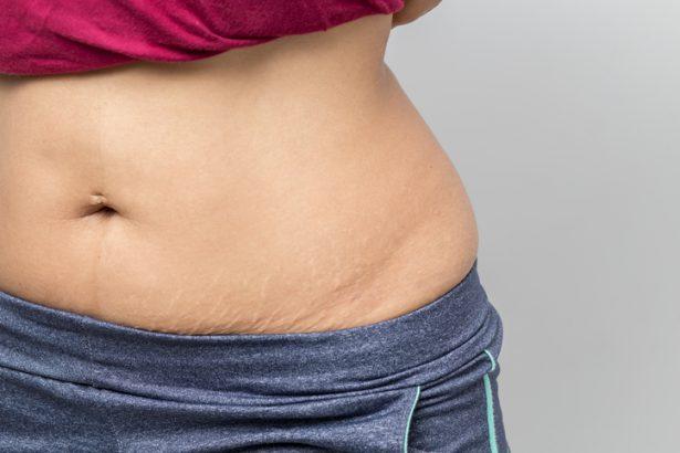 la perte de poids atténue-t-elle les vergetures