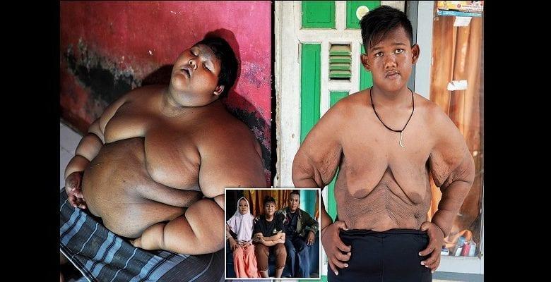 perte de poids avec orbera