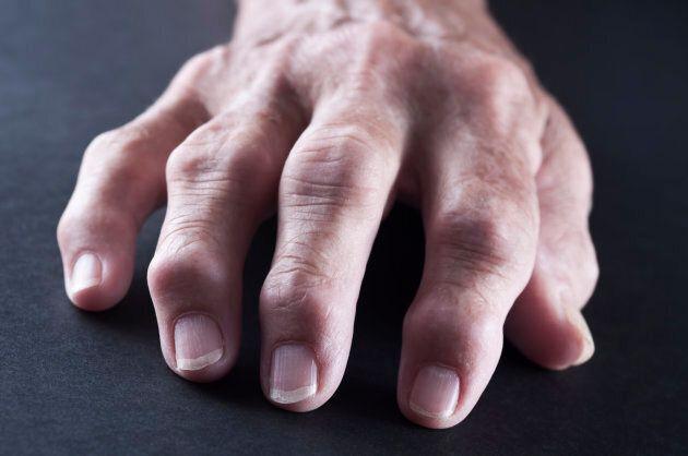 La polyarthrite rhumatoïde : symptômes, évolution et diagnostic