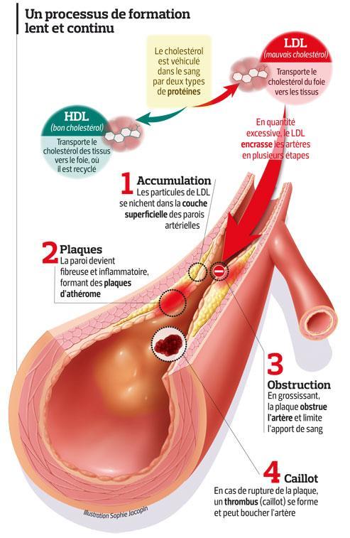 Les 10 boucliers contre le cholestérol