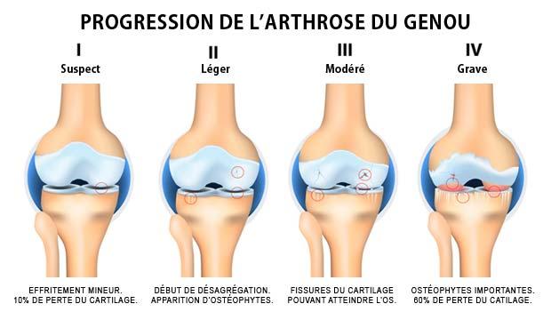 perte de poids arthrite dégénérative