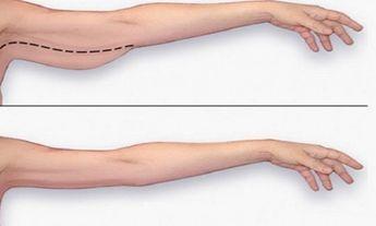 façons de perdre du poids de vos bras