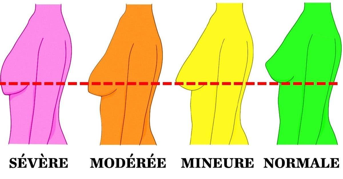 façons de mincir la poitrine taux de perte de pourcentage de graisse corporelle