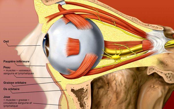 Les différents types de poches sous les yeux — Typology