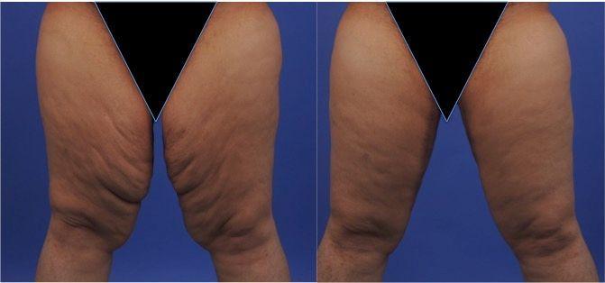 enlever la graisse de lintérieur de la cuisse supérieure perdre toute la graisse corporelle en une semaine