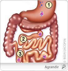 une anémie sévère entraîne-t-elle une perte de poids