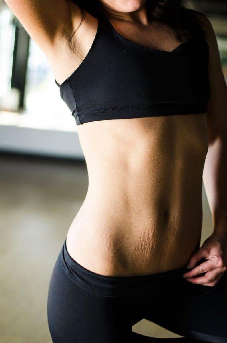 Vergetures et perte de poids - Soin minceur, cellulite - FORUM Beauté - Doctissimo