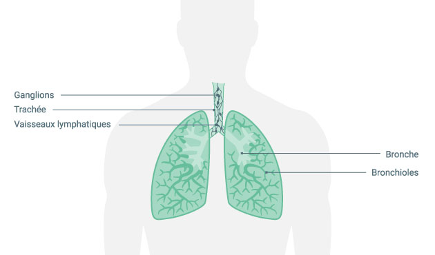 perte de poids et ombre sur le poumon