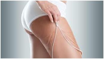 Comment raffermir la peau après une perte de poids ?