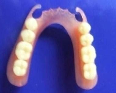 La relation de cause à effet en orthodontie