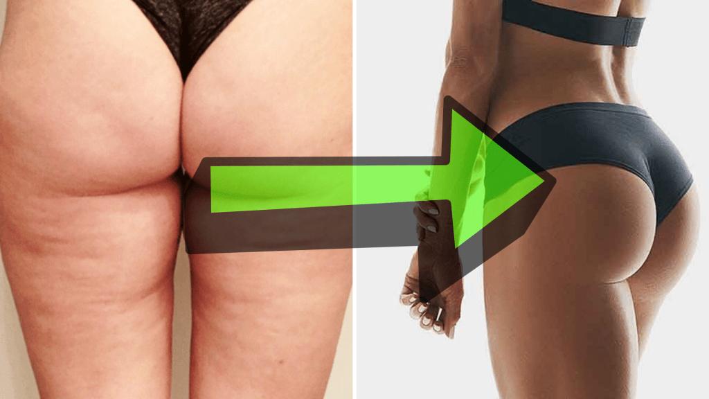 Maigrir des fesses | Fourchette & Bikini