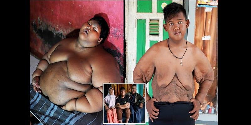 Indonésie : l'enfant le plus gros du monde opéré pour sauver sa vie