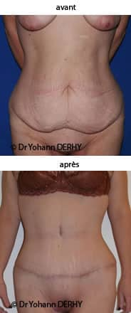 comment perdre du poids pour une abdominoplastie