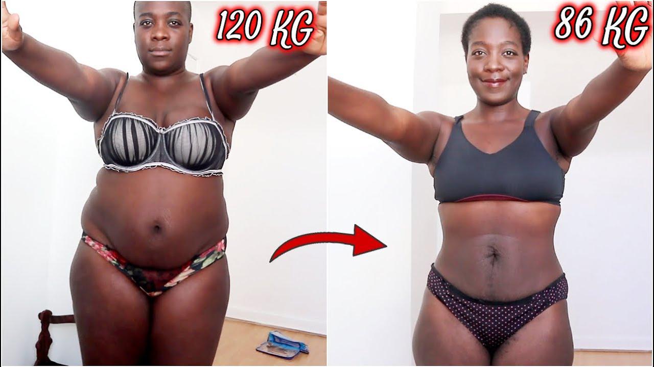 86 kg maigrir anémie de perte de poids inexpliquée