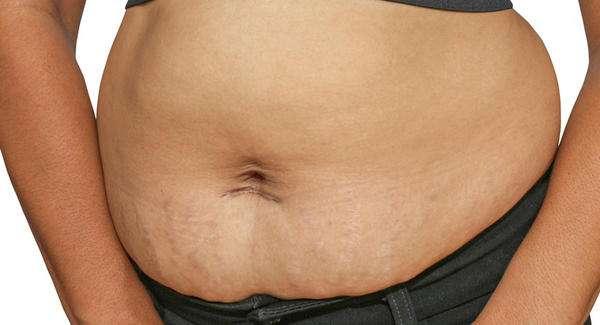 Prise de poids à la grossesse: comment gérer les kilos sans faire de régime - L'Express Styles
