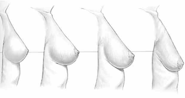 élimination des polypes utérins et perte de poids