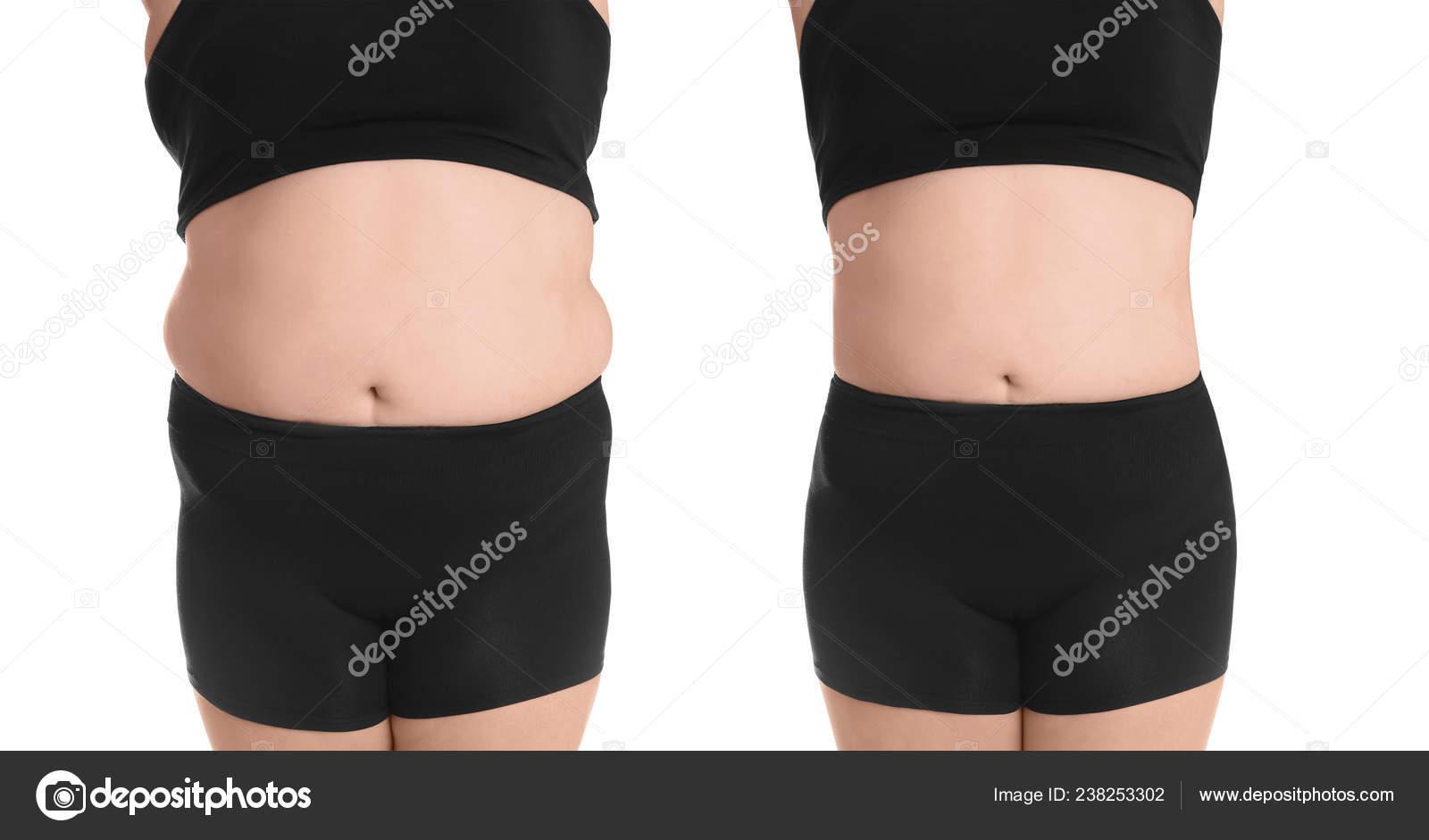 ecchymoses inexpliquées perte de poids fatigue perte de poids wyndhurst
