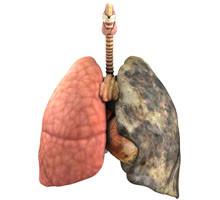 Cancer du poumon - Causes, Symptômes, Traitement, Diagnostic - gestinfo.fr