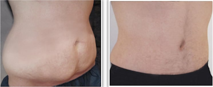 Abdominoplastie: quel poids avant une chirurgie réparatrice du ventre?