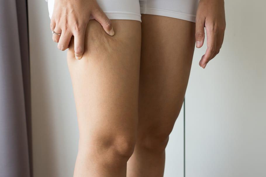 5 astuces essentielles pour perdre la cellulite aux cuisses