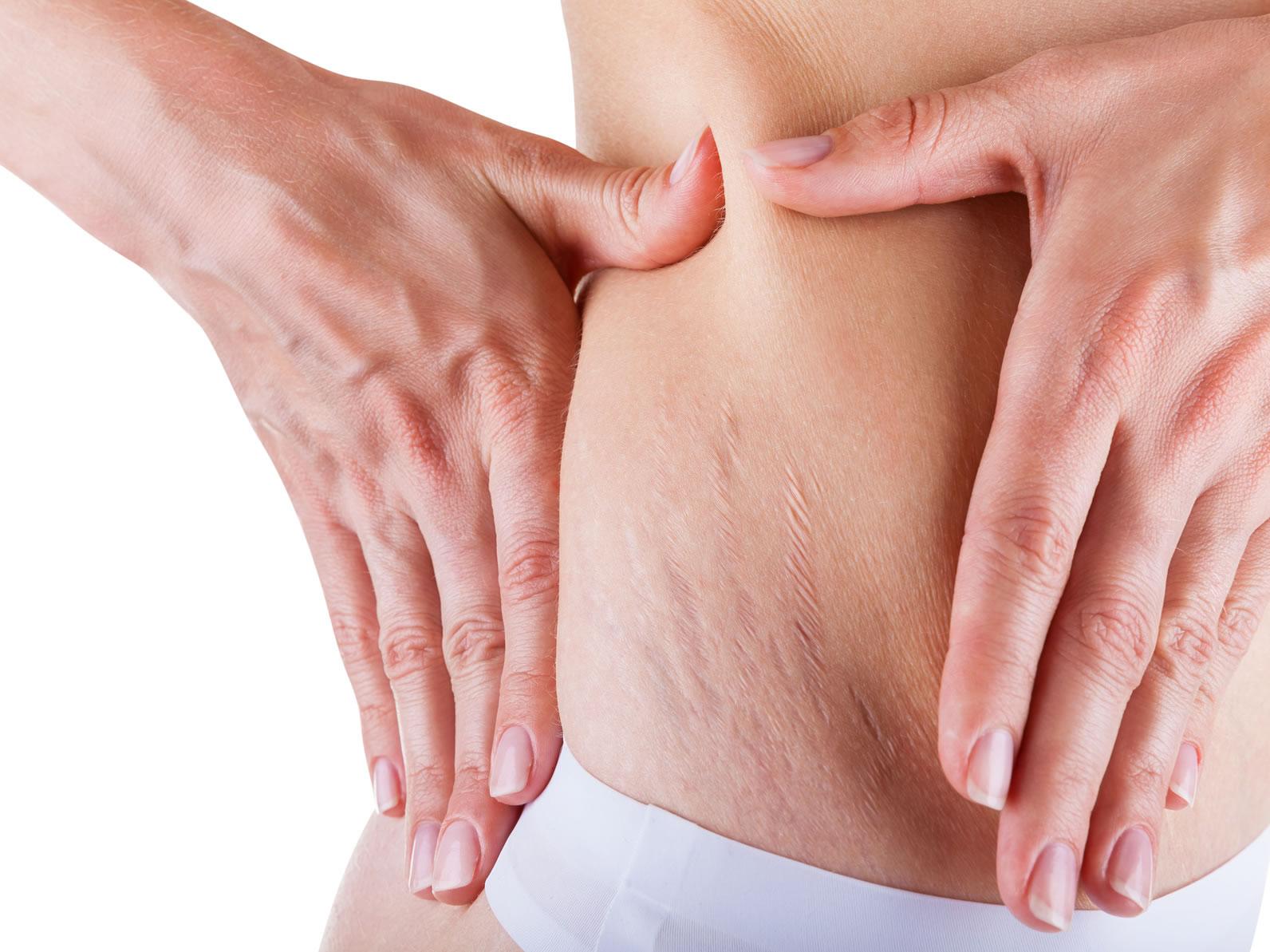 Fatigue, prise de poids, sudations : est-ce les hormones, docteur ? - Revue Médicale Suisse