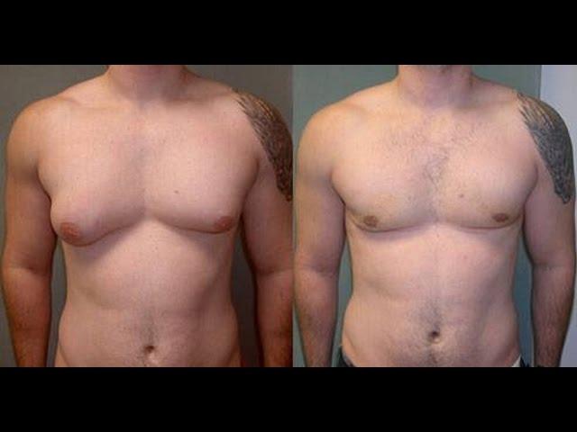 perdre de la graisse dans les pectoraux