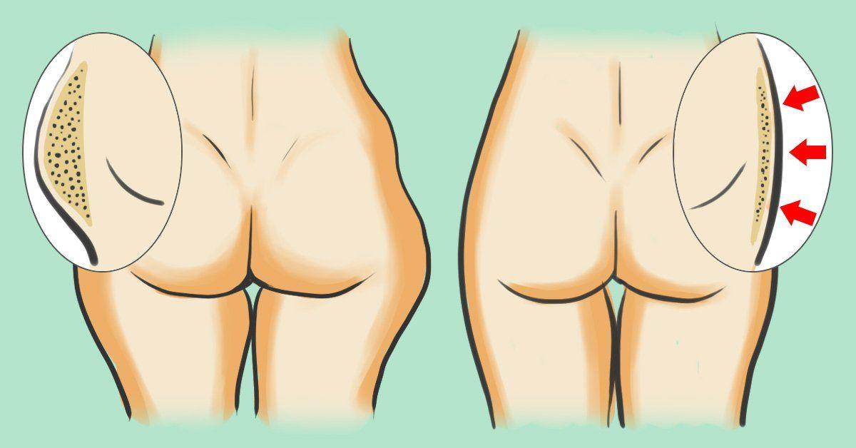 comment brûler les graisses des hanches