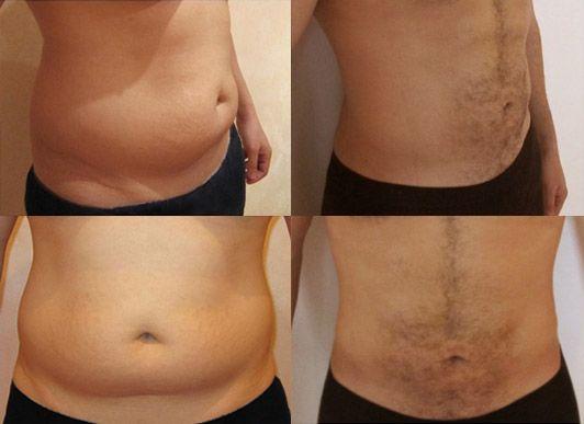 Vais-je perdre du poids avec une abdominoplastie ?
