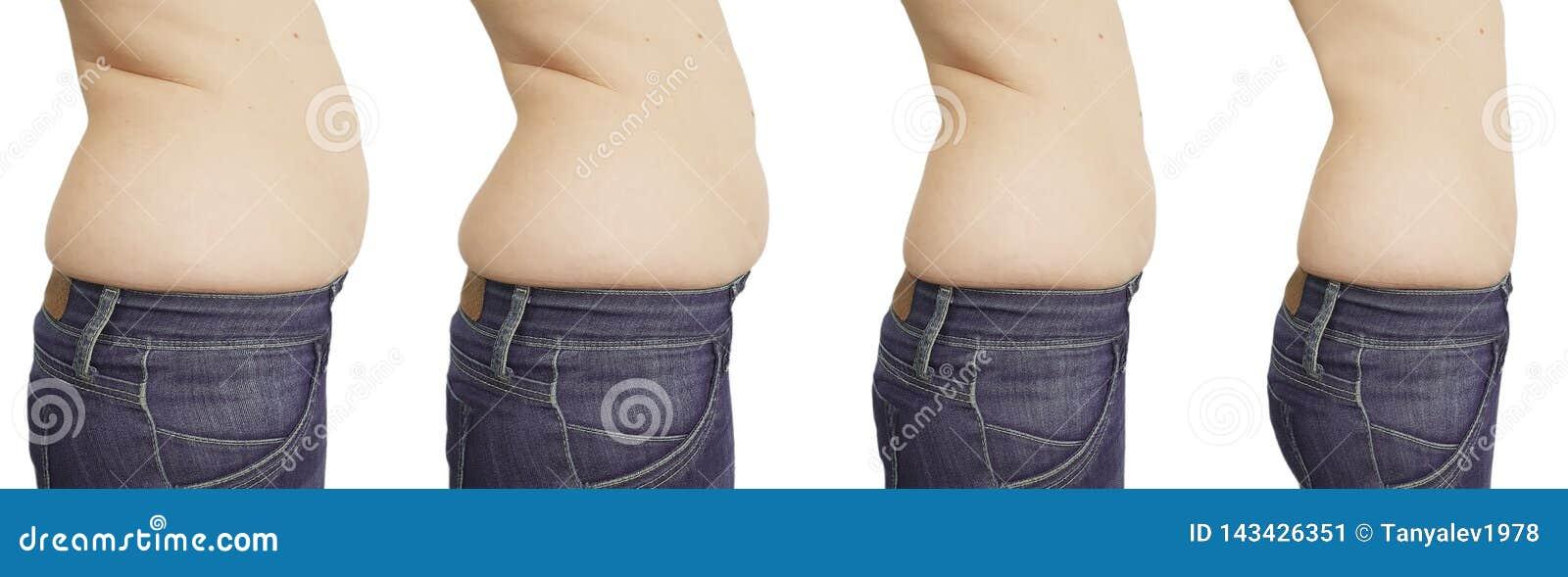 Perte de poids localisée - Perdre des cuisses, du ventre, des fesses - Doctissimo