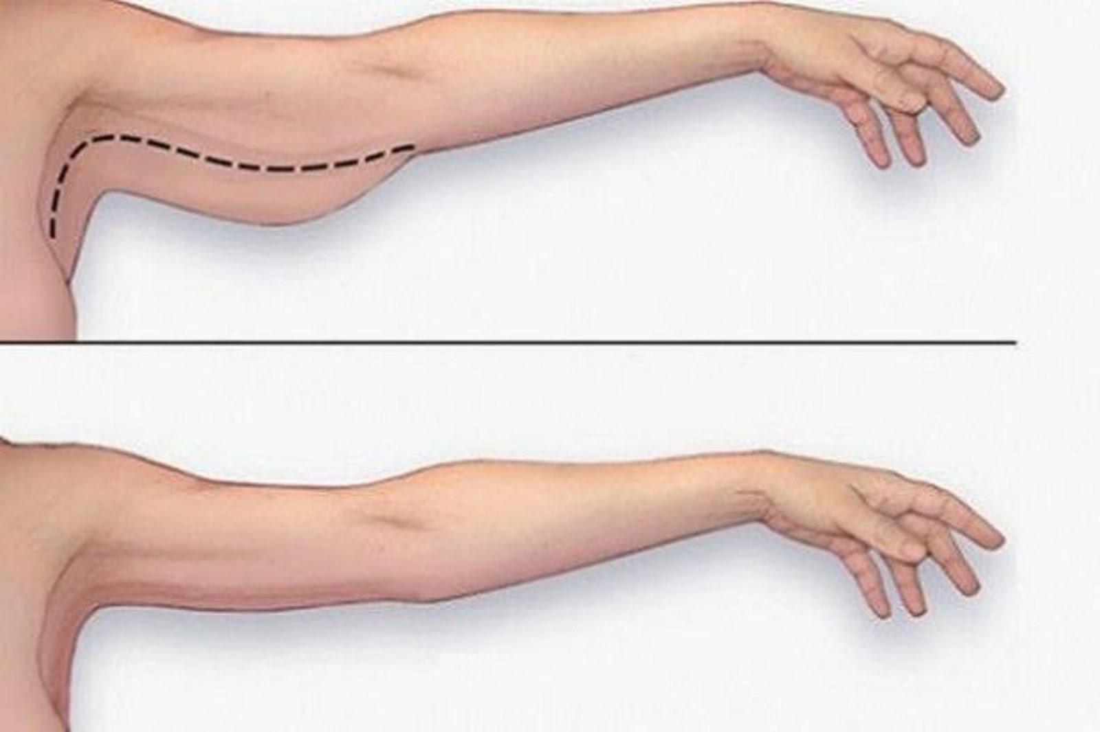 brûler les graisses du haut des bras