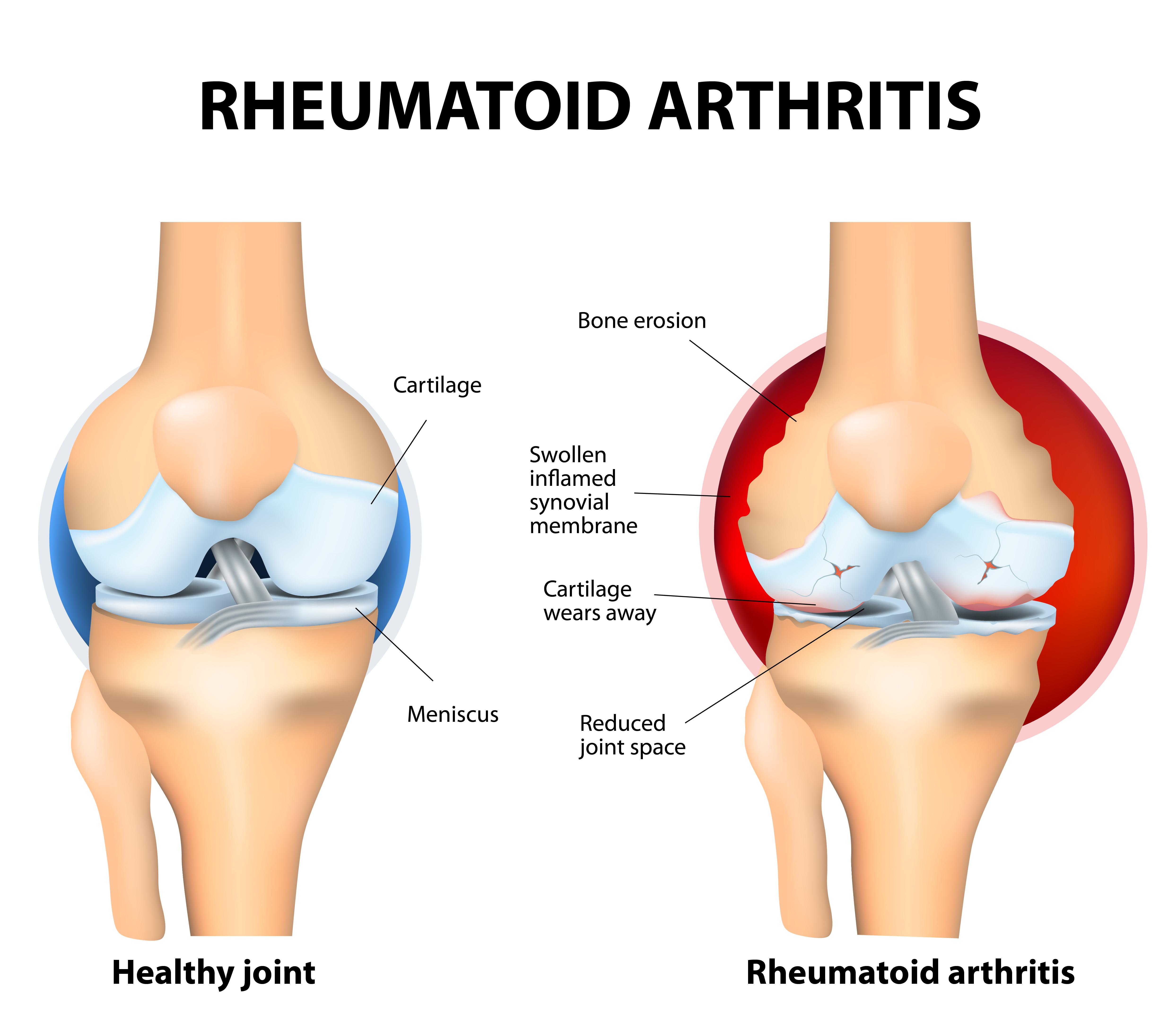 Douleurs à la hanche - Quand devez-voir consulter un médecin