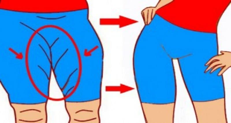 enlever la graisse de lintérieur de la cuisse supérieure zone de combustion des graisses h