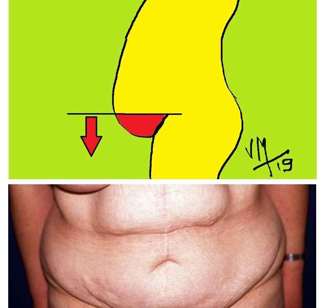 enlever la poitrine de graisse corporelle