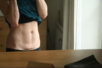 Retendre le ventre après un gros régime