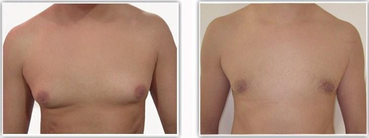 comment perdre de la graisse autour des pectoraux tops perte de poids airdrie