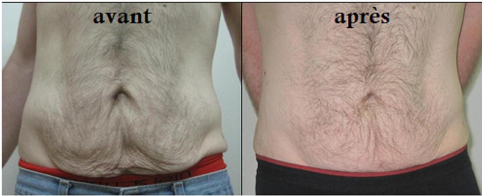 resserrer le ventre après la perte de poids