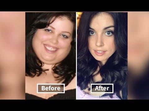 histoires avant et après la perte de poids