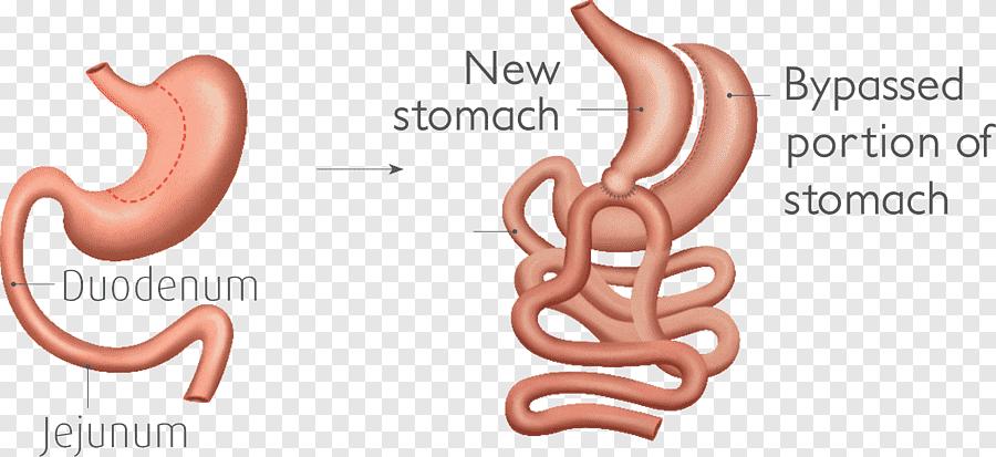 gastrectomie longitudinale: chirurgie, avantages et cliniques